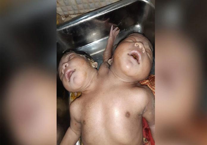 ભારતમાં જન્મી 3 હાથ, બે માથાવાળી બાળકી!